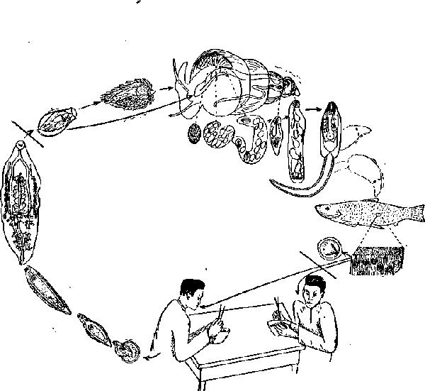 Клонорхоз
