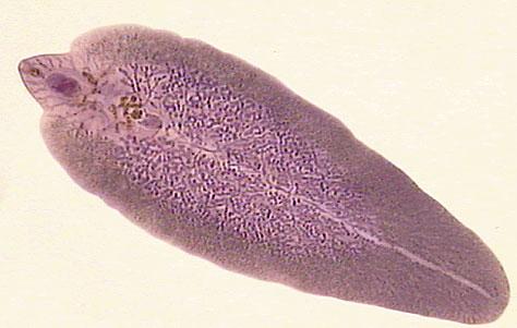 сосальщики паразиты человека симптомы